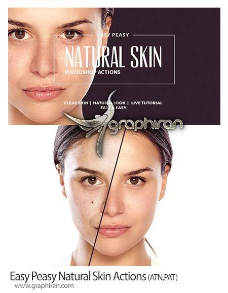 روتوش ساده و طبیعی پوست صورت