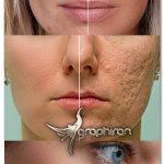 اکشن فتوشاپ روتوش فوق حرفه ای Ultimate Skin Retouch Photoshop Action