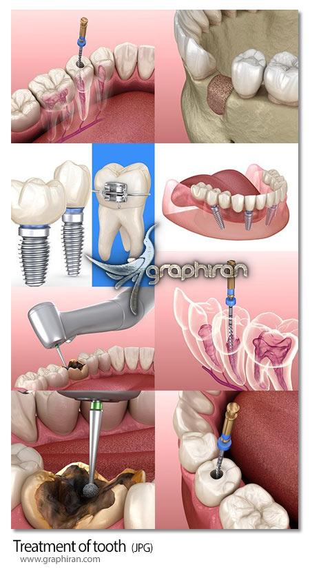 دانلود تصاویر استوک دندانپزشکی