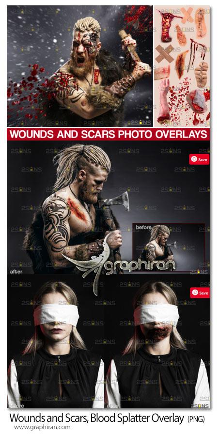 دانلود تصاویر PNG زخم و خون و خراش